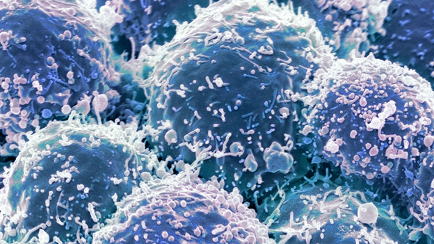 cancer cell graphic